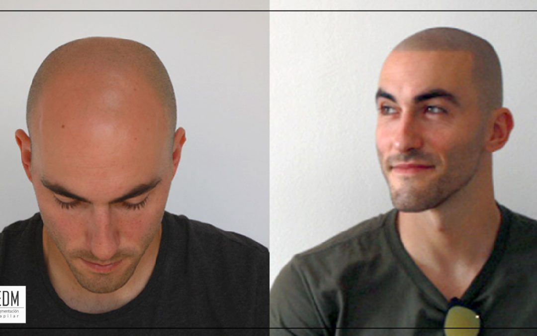 Losing your hair is no longer a tragedy!