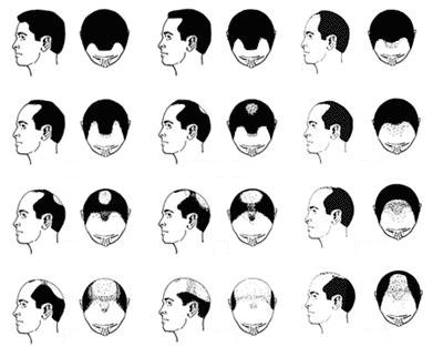 Descubre el tratamiento para los tipos de alopecia más comunes
