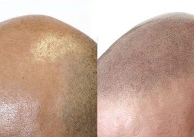 Tratamiento alopecia general