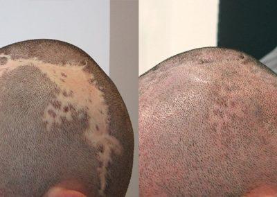 Solución para cicatrices
