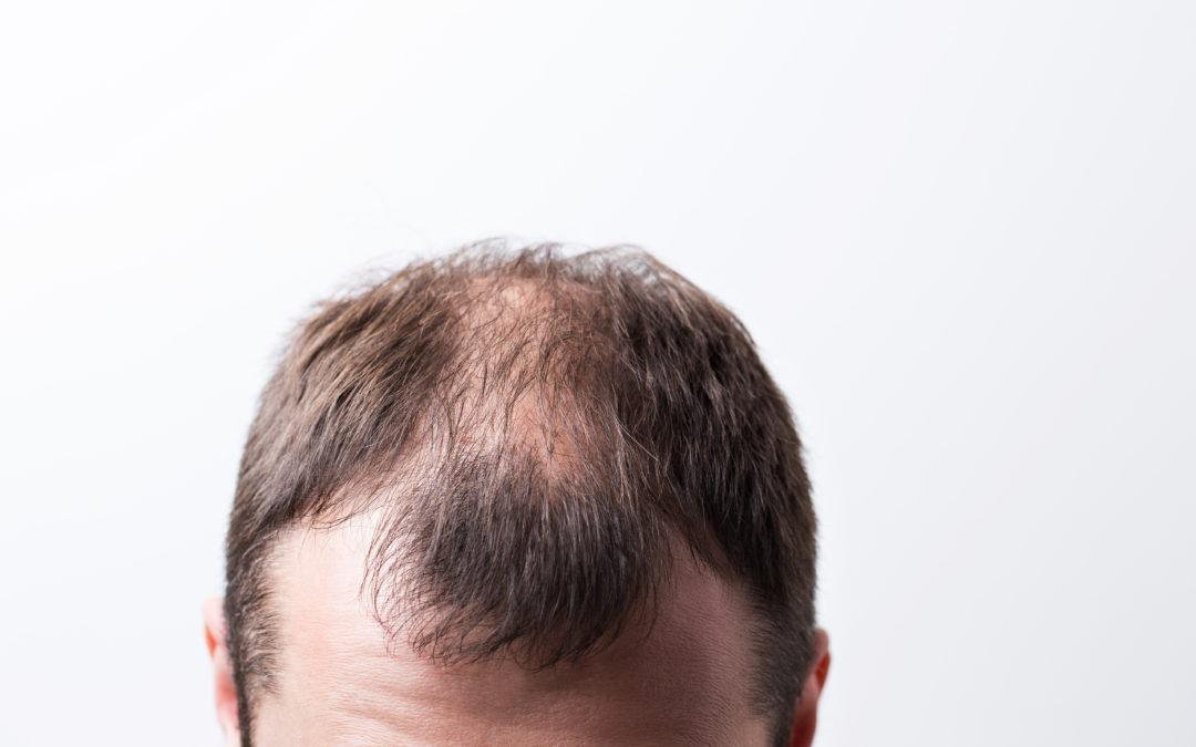 ¿Para quién se recomienda la Micropigmentación Capilar?