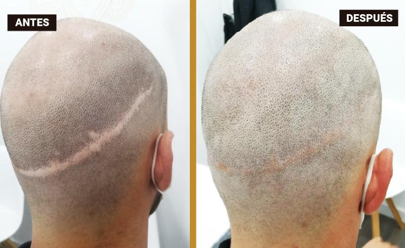 ¿Qué es la Micropigmentación para la reconstrucción de cicatrices?