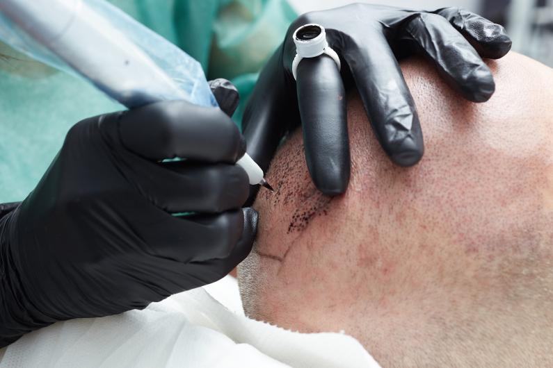 Cuidados anteriores y posteriores al tratamiento de micro pigmentación capilar